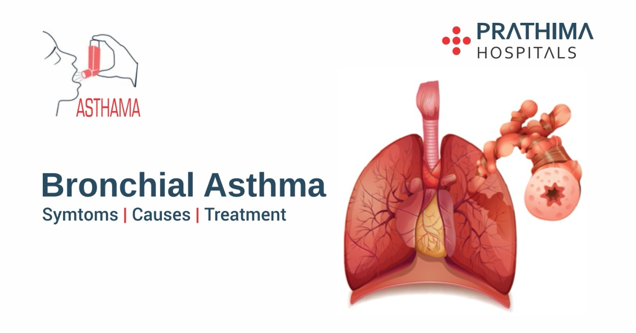 thesis on bronchial asthma On going thesis projects deptt of chest & tuberculosis prevalence of aspergillus skin hypersensitivity testing in patients of bronchial asthma.