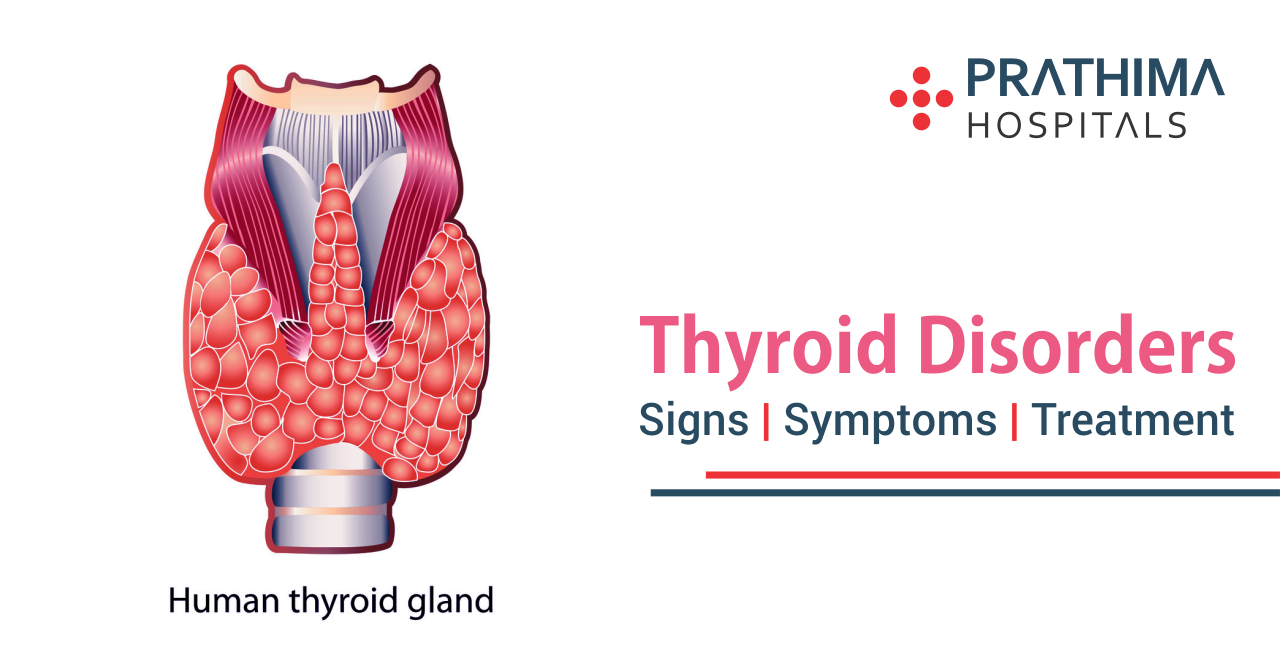 Thyroid Disorders – Signs   Symptoms and Treatment