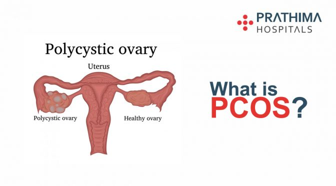 PCOS (Polycystic Ovary Syndrome)
