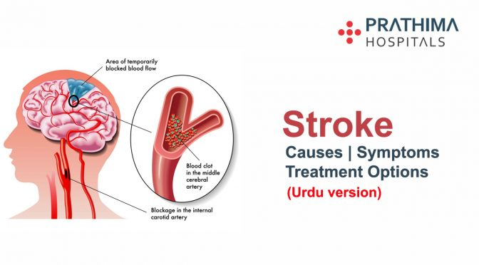 Stroke – Symptoms, Causes And Treatment Options (Urdu Version)