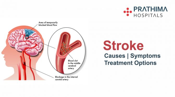 Stroke – Symptoms, Causes and Treatment Options