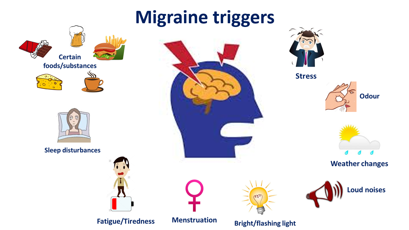 migraine triggering points
