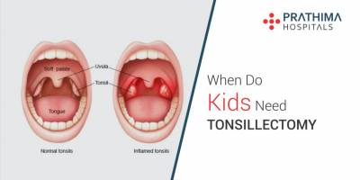 When Do Kids Need Tonsillectomy