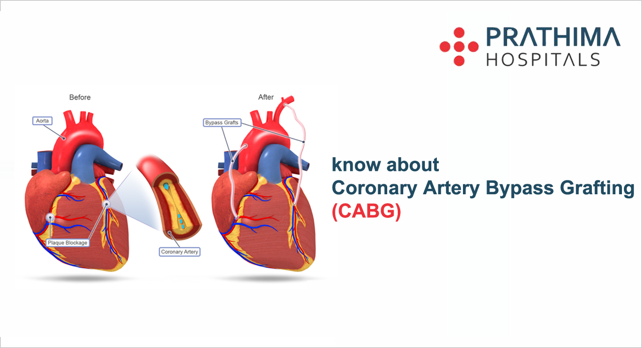 Know About Coronary Artery Bypass Grafting (CABG)