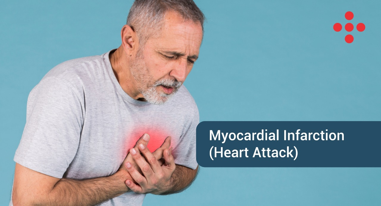 Myocardial Infarction- Heart attack