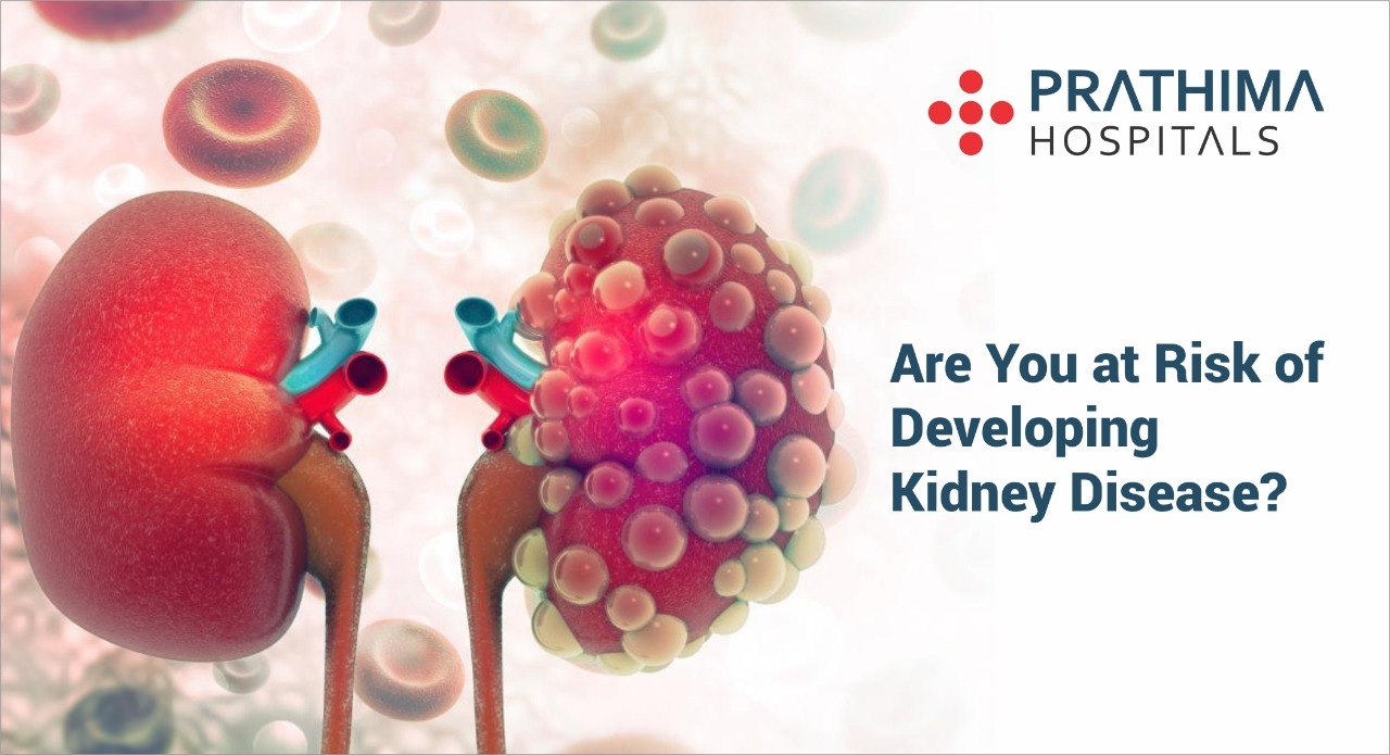 Are You at Risk of Developing Kidney Disease?