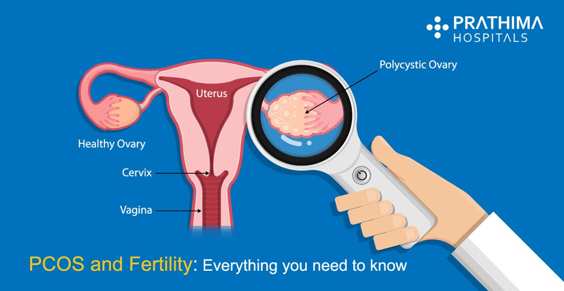 PCOS and Fertility: Everything You Need to Know